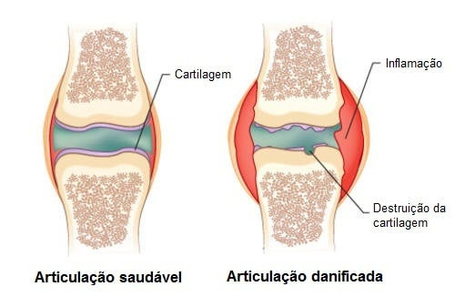 remediu articular artritic)