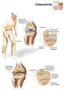 tratament articular intern